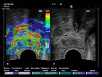 Urologie-Abb-MRT