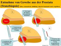 Stanzbiopsie der Prostata