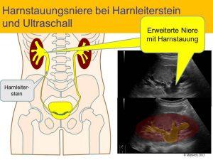 harnstauungsniere-rechts-im-ultraschallbild-b3