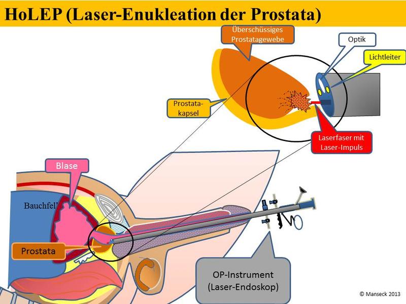 prostata op bei parkinson