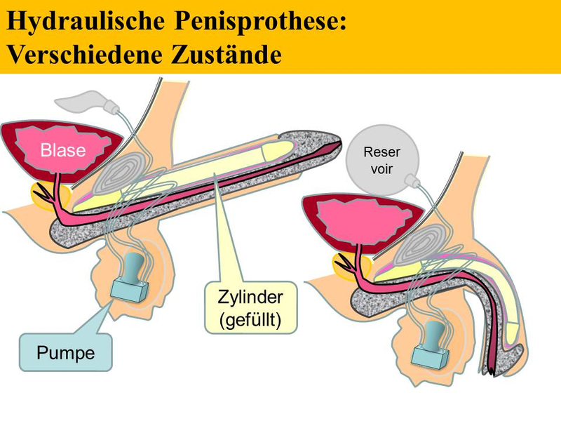 Penis Prothese