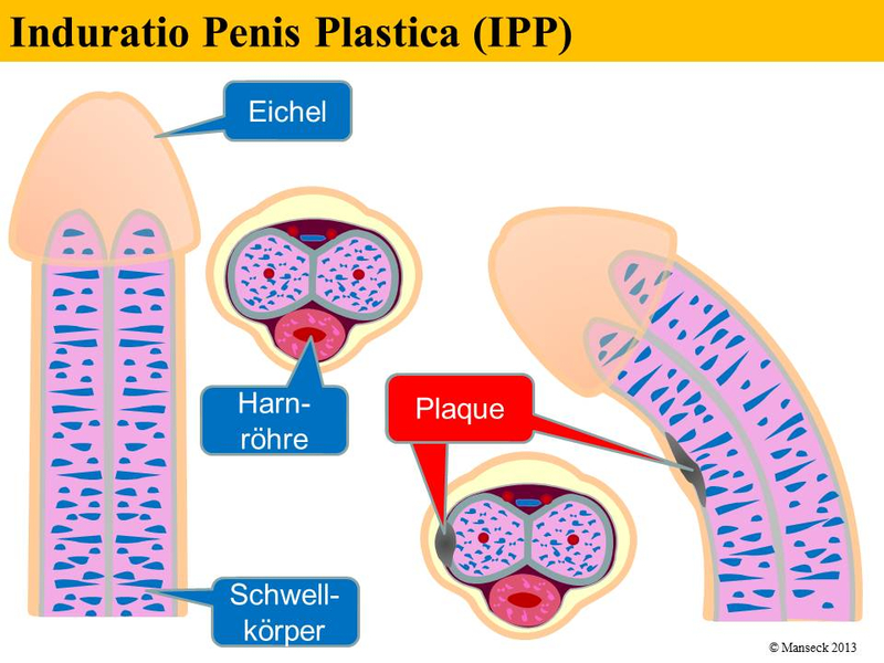 durchbruch penis operation