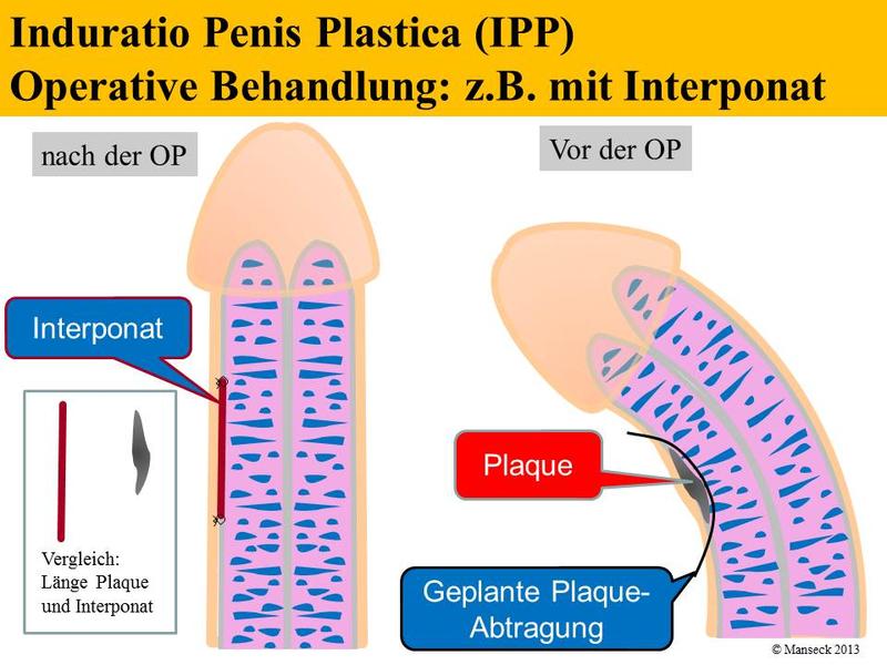Unterschiede penis Anatomy of
