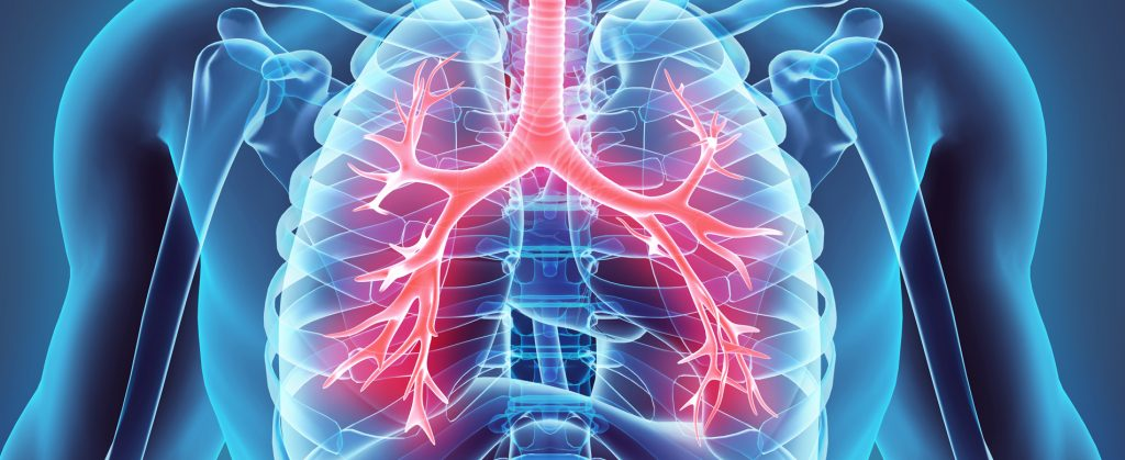 Schaubild einer Lunge